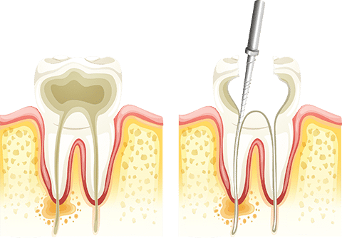 after can use straw teeth wisdom extraction